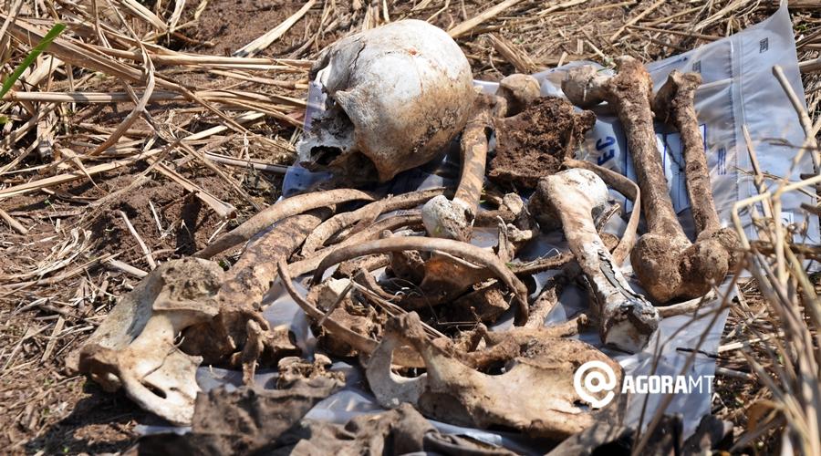 Imagem: Ossada humana encontrada as margens da Br 163 Ossada humana com prótese na perna é encontrada em Rondonópolis