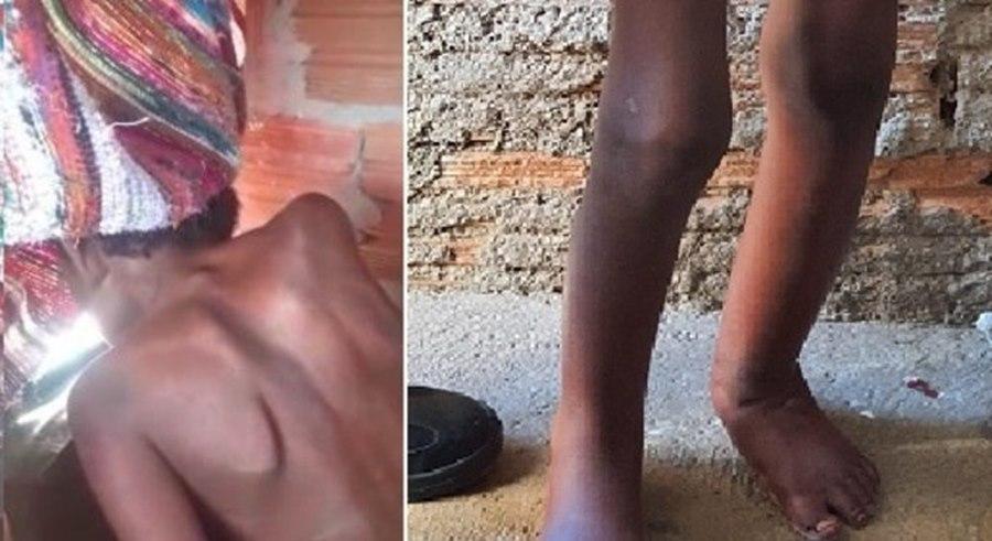 Imagem: Ccrianca encontrada acorrentada Tios de menino que foi encontrado acorrentado vão lutar pela guarda do garoto