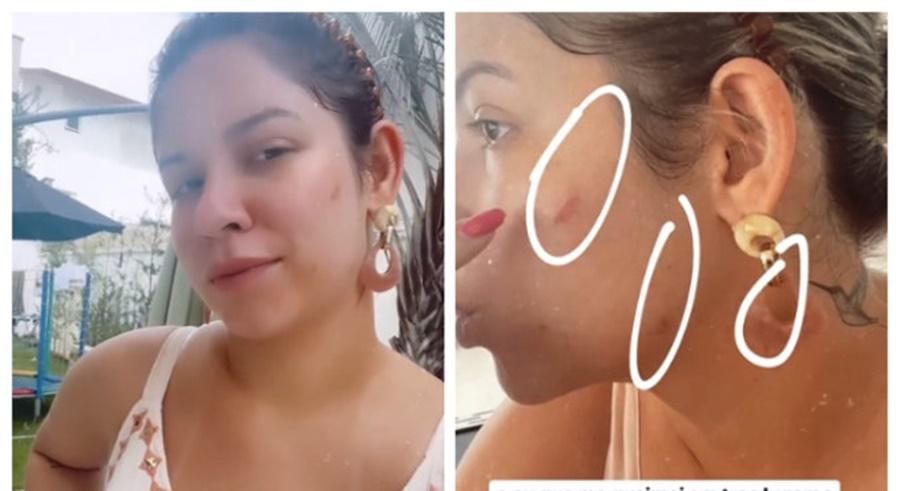 Imagem: Marilia Mendonca Marília Mendonça mostra queimaduras após usar chapinha