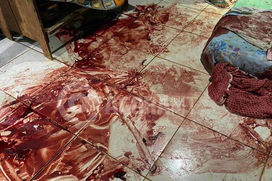 Imagem: A vitima foi atingida com varias facadas na cabeca Homem fica em estado grave após ser atingido por diversas facadas na cabeça