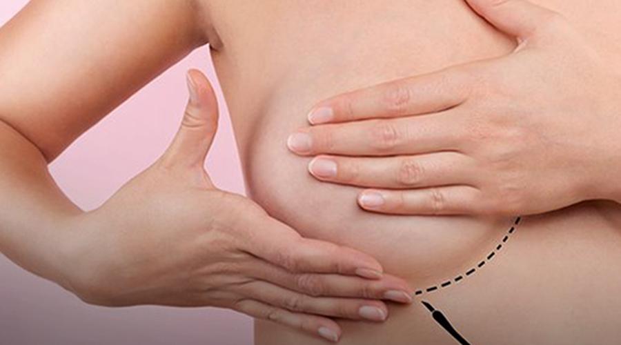 Imagem: Femama alerta sobre mamografias após vacina contra Covid-19