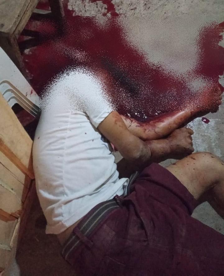 Imagem: A vitima morreu no local Homem é morto com golpes de facão em Rondonópolis